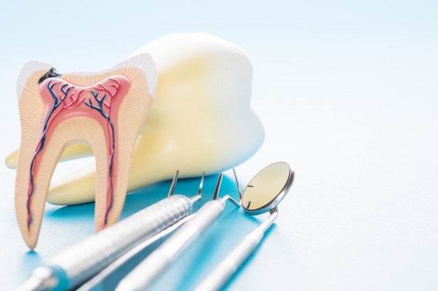 solar Dental TX root canals