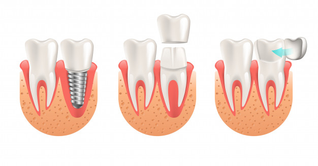 teeth-procedure-implant-veneer-crown-restoration